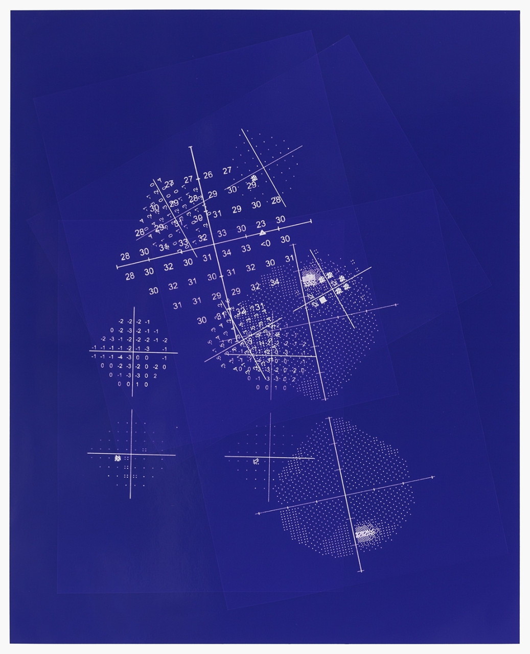 Visual field (Blue 02)