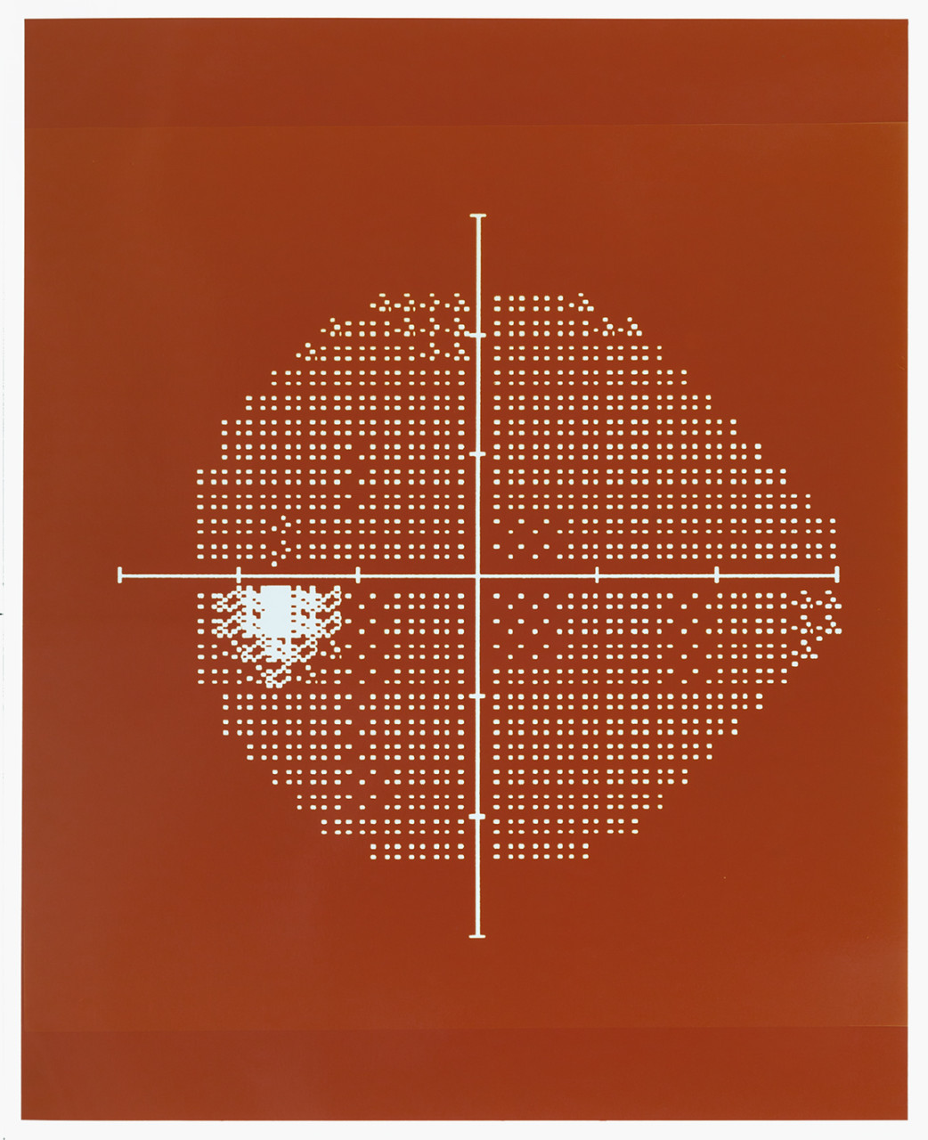 Visual field (Dark orange)