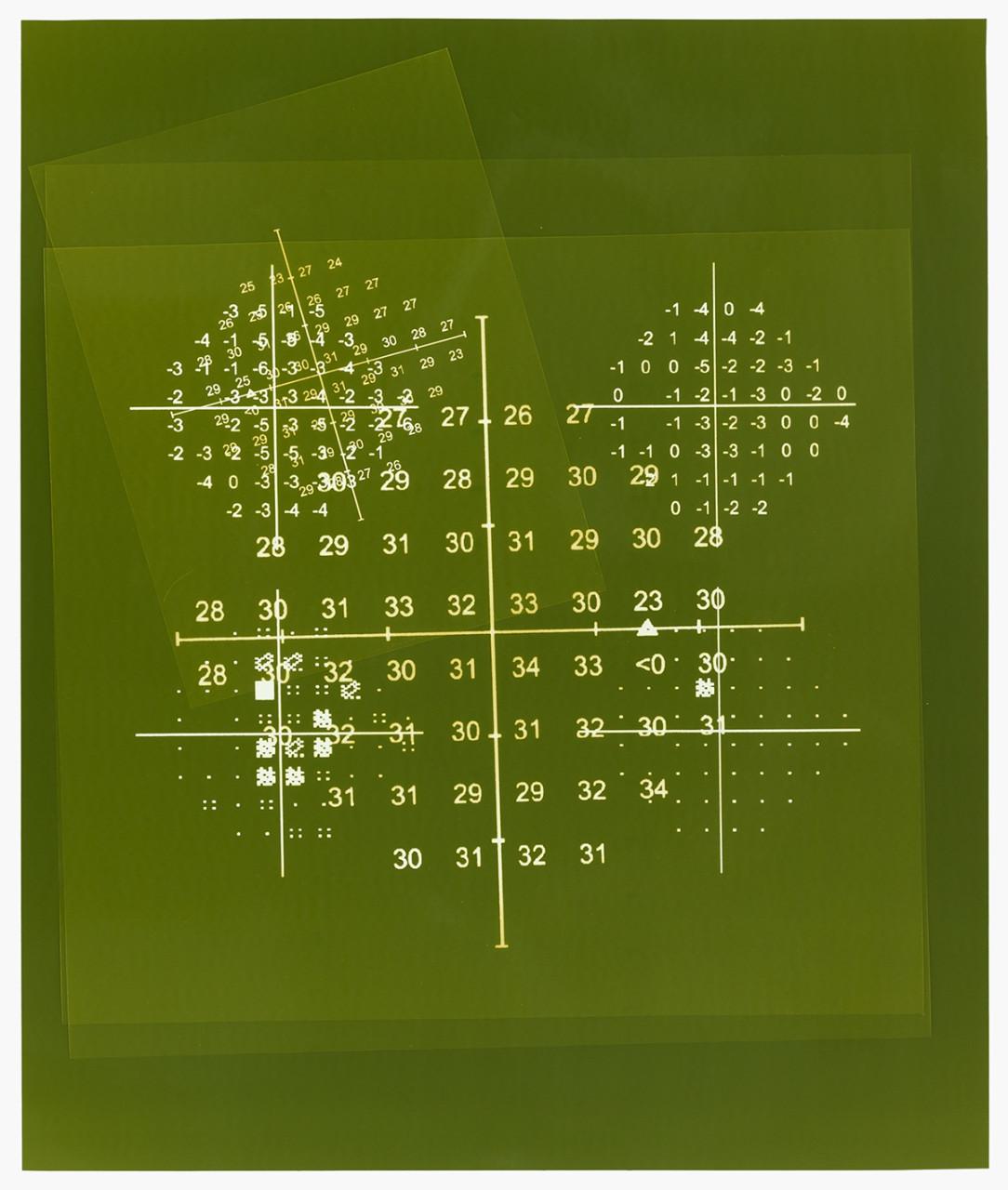 Visual field (Green)