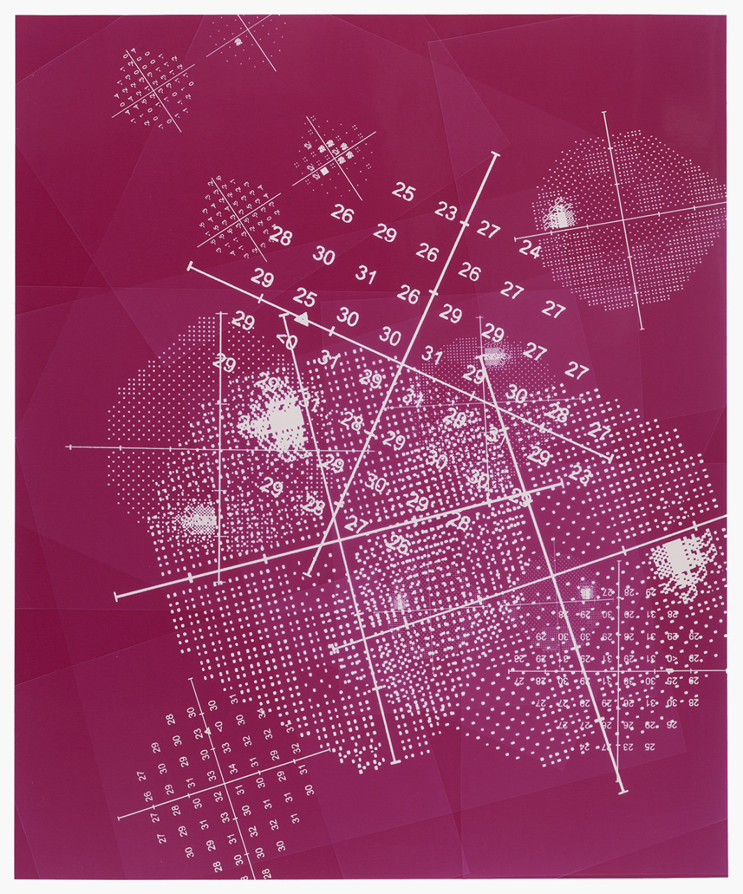 Visual field (Magenta)