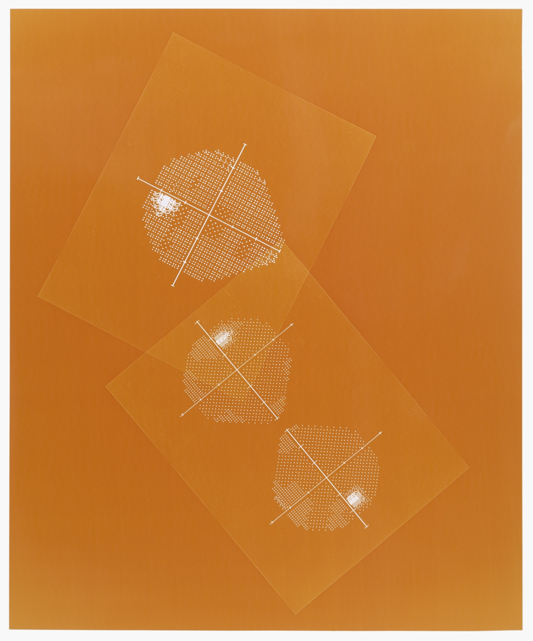 Visual field (Orange)