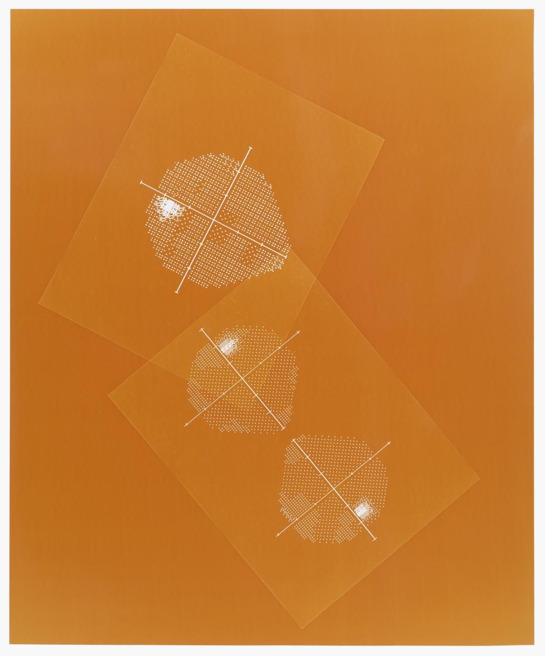 Visual field (Orange)