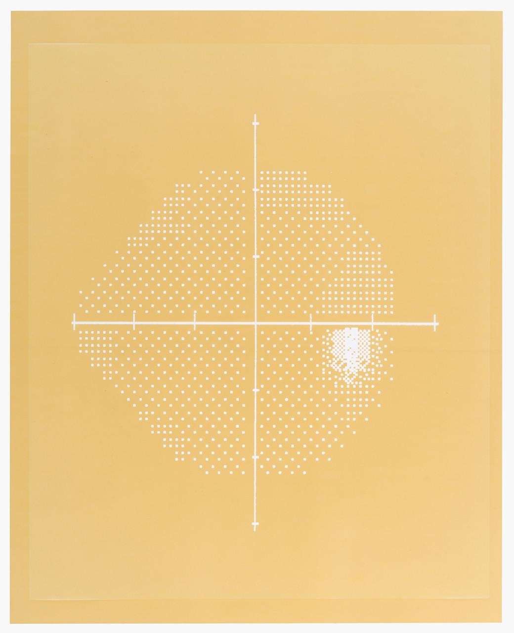 Visual field (Pail yolk yellow)