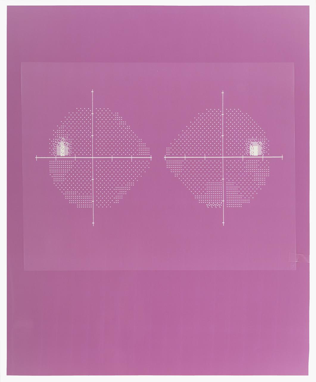 Visual field (Pink 02)